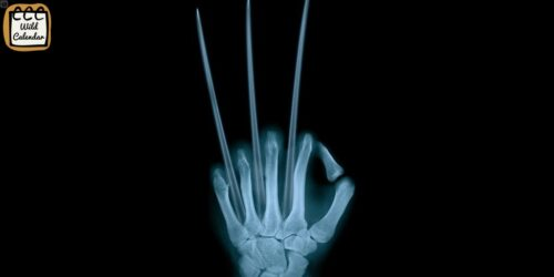 Read more about the article International Day of Radiology